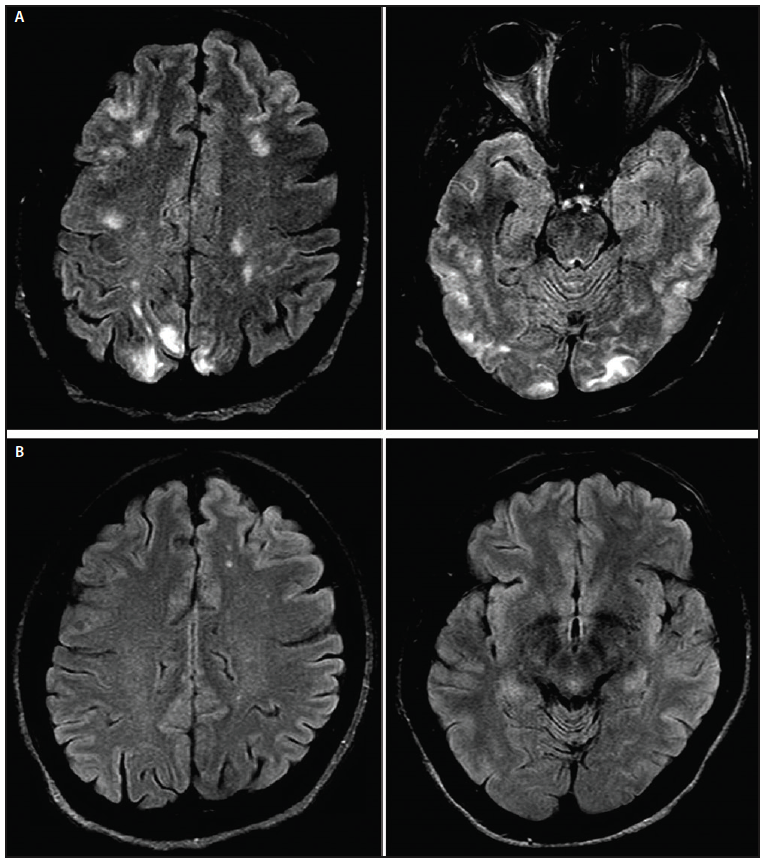 Figure 1. Brain MRI. Brain fluid-attenuated recovery (FLAIR) MRI sequence performed at initial presentation, demonstrating bilateral and posteriorly predominant cerebral FLAIR hyperintensities affecting both gray and white matter (A). These lesions did not enhance or restrict diffusion (B). Brain MRI performed 4 months after presentation revealed resolution of lesions (C, D).