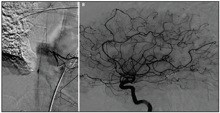 "Figure 3. Spinal and cerebral conventional angiography. Spinal angiogram of the anterior spinal artery illustrating a fusiform pseudoaneurysm at T10 (white arrow) (A). Cerebral angiogram demonstrating multifocal segmental stenosis resulting in a ""beaded"" appearance (white arrows) (B)."