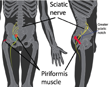 Figure 1. Sciatic notch anatomy. Created by Patrick J. Lynch & KDS4444. https://en.wikipedia.org/wiki/Piriformis_syndrome#/media/File:Piriformis_syndrome.jpg Reused with permission under