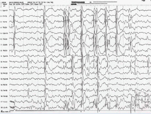 Figure 1. EEG in benign epilepsy with centrotemporal spikes showing activation of spike-wave clusters in early sleep over the central temporal regions.