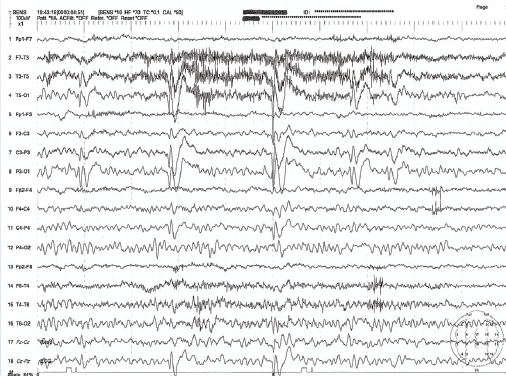 Figure 3. EEG in benign occipital epilepsy. Note the spikewave discharges that are more visible on the left.