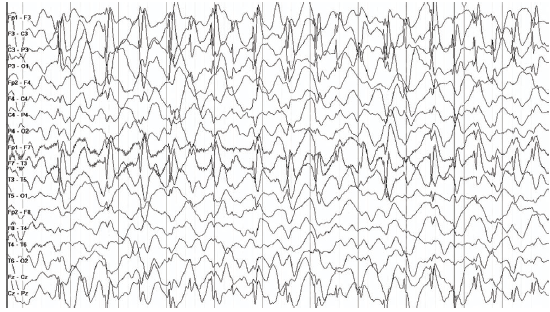 Figure 2. EEG in continuous spike-and-waves epilepsy during sleep. Note the continuous focal spike-and-wave activity in slowwave sleep, distributed over the left central temporal regions.