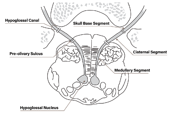 Figure 2. Axial view of the 3 proximal segments of the hypoglossal nerve at the level of the hypoglossal nucleus in the medulla.