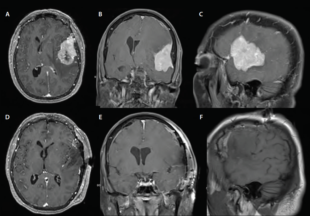 Figure 1. Representative images from preoperative and postoperative brain MRI. The top row shows a large dural based lesion, in axial (A), coronal (B), and sagittal (C) orientation that seems to be splitting the fissure between the frontal and temporal lobes. The bottom row (D-F) is the post-operative MRI that confirms gross total resection of this lesion, with preservation of adjacent brain.