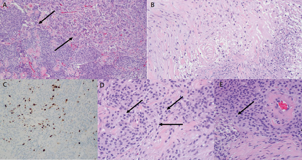 Figure 2. Pertinent histopathological images of this atypical meningioma. H&E at 10x, although much of the tumor had a classic meningothelial appearance (A upper right, arrow); there were many more patternless-appearing foci (A, lower left). H&E at 20x, occasional foci of necrosis were associated with hyalinization. Ki-67 at 20x, a proliferation index appears to exceed 4% (C). H&E at 40x, although it was uncommon to find more than 2 mitotic figures in 1 high-power field, a mitotic index exceeded 5/10 hpf focally (D). H&E at 40x, 2 mitotic figures in 1 hpf (E).