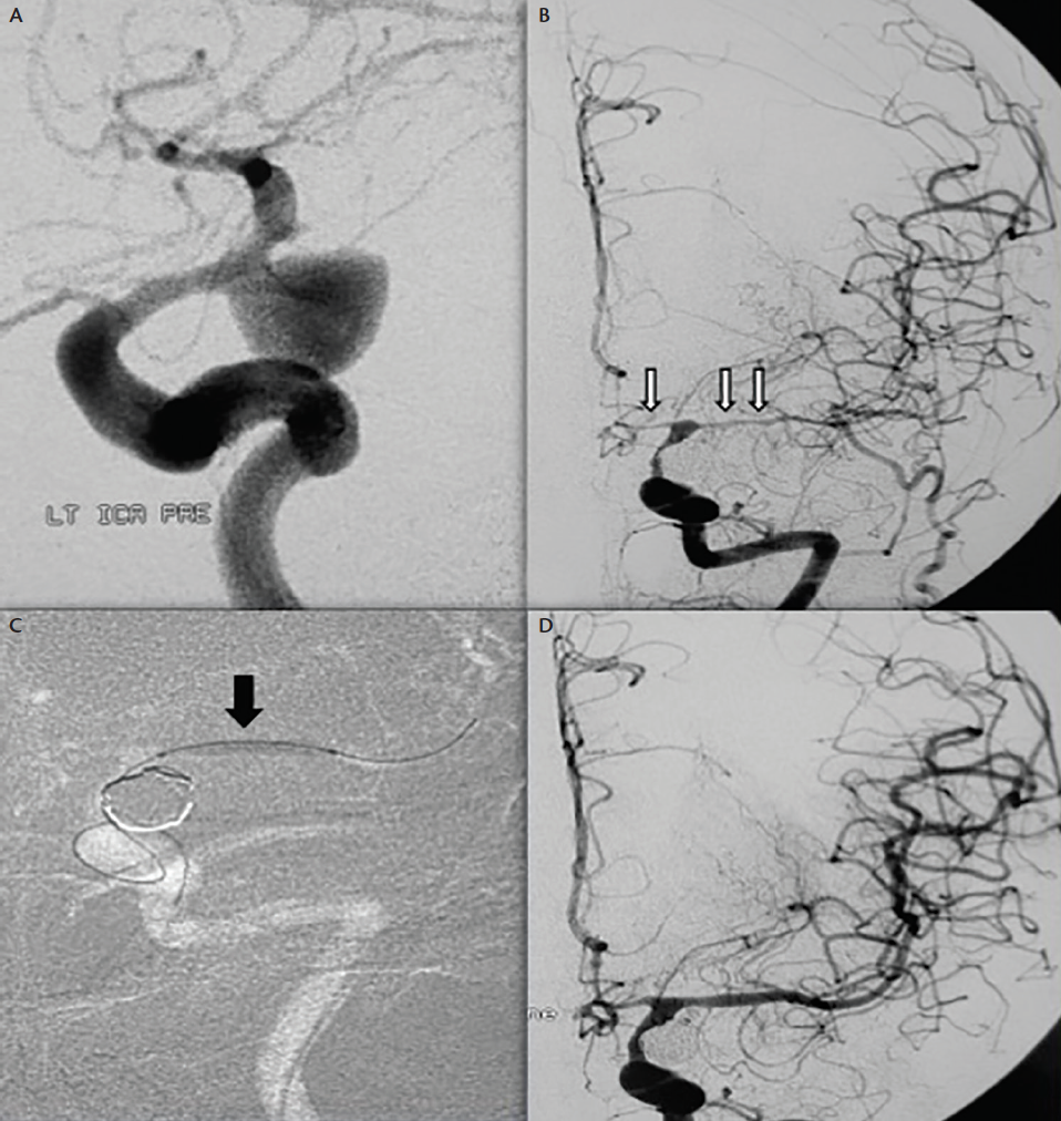 Figure 1. Digital subtraction angiography (DSA) of a 48-year old female patient with subarachnoid hemorrhage (SAH) due to rupture of a left posterior communicating artery (PCA) aneurysm (A), which was successfully secured by coiling. On day 3, the patient deteriorated with right side hemiparesis and speech disorders. Subsequent DSA revealed a severe vasospasm (white arrows) of the left middle cerebral artery (MCA) and anterior cerebral artery (ACA) (B). Following angiography, a transluminal angioplasty of the left MCA with balloon hyperglide catheter (black arrow) was performed and nimodipine was infused selectively to both MCA and ACA (C). Two-dimensional DSA at the end of procedure revealed improved vessel diameter of both affected arteries (D). Contributed from the personal archive of Dr. Georgios Magoufis (interventional neuroradiologist).