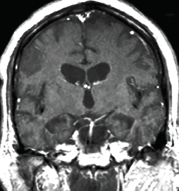 Figure. Brain MRI without contrast showing global cerebral atrophy and widening of ventricles (temporal horns, 3rd ventricle).