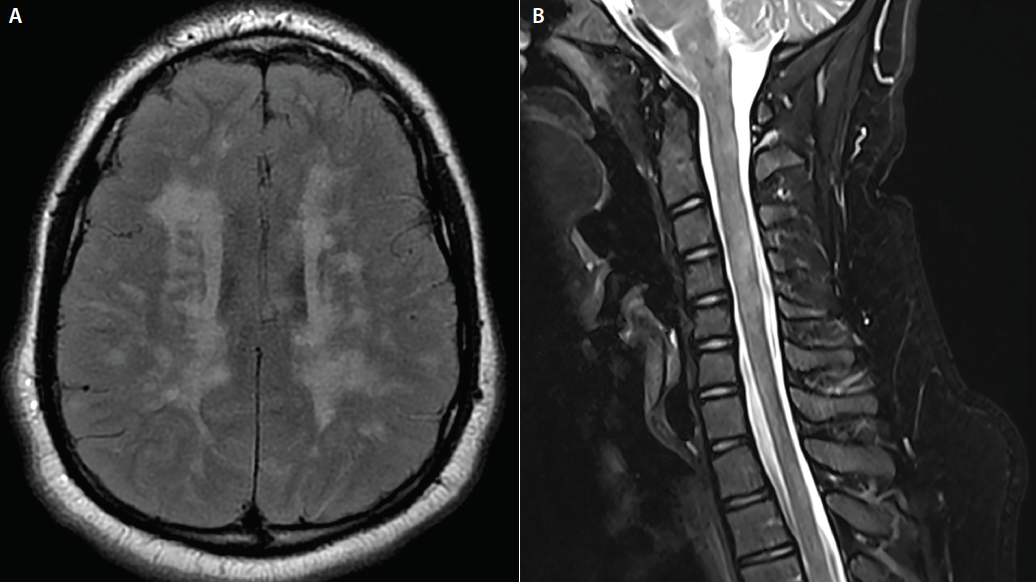 Figure. Axial fluid-attenuated inversion recovery (FLAIR) MRI of the brain (A) and T2 parasagittal imaging of the cervical spine (B) from a boy, age 16 years, with multiple sclerosis. Note the high lesion burden and areas of early confluence. Children with MS are subject to more frequent relapses and typically have a higher lesion burden than adults with MS. (Images courtesy of Dr. Aaron Carlson.)