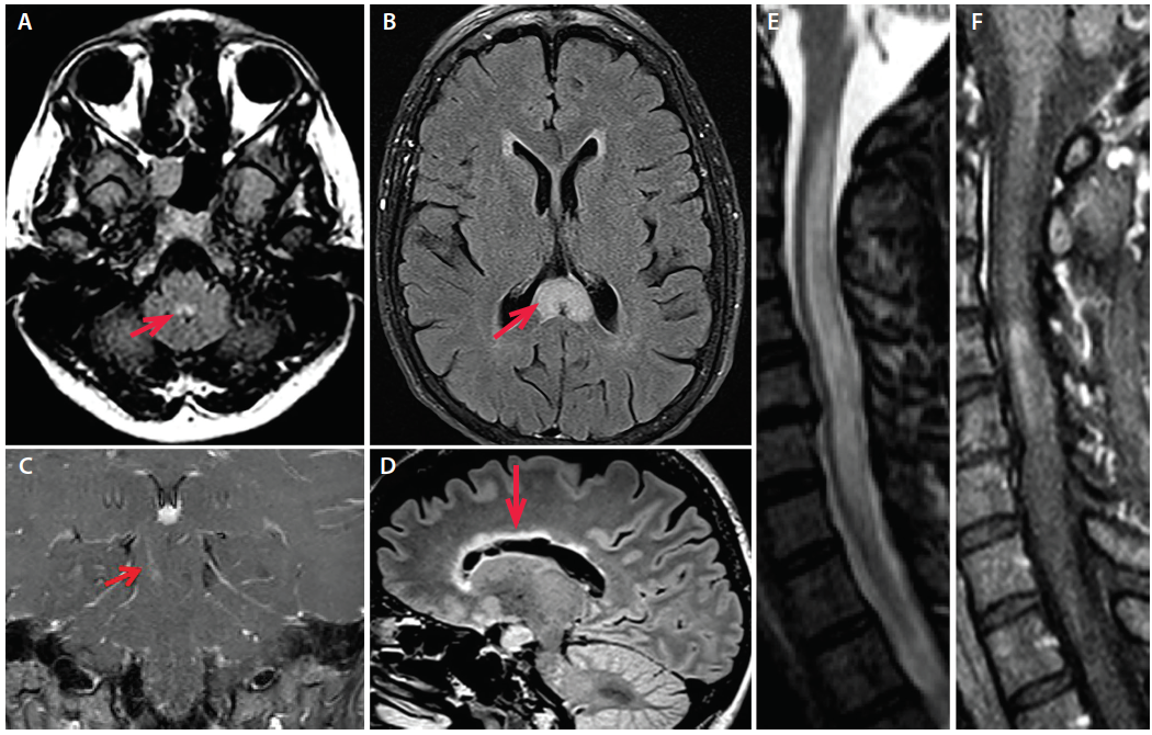 "Figure 1. A: Axial fluid-attenuated inversion recovery (FLAIR) MRI of a patient with AQP4+ NMOSD and area postrema syndrome demonstrating T2 hyperintensity in the dorsal medulla (image courtesy of Dr. Divyanshu Dubey). B: Axial FLAIR MRI from a patient with AQP4+ NMOSD demonstrating an ""arch bridge"" lesion in the splenium of the corpus callosum (arrow; Image courtesy of Dr. Carlos Sollero). C: Coronal T1 postgadolinium MRI in a patient with AQP4+ NMOSD demonstrating an enhancing linear brainstem lesion in the right cerebral peduncle. D: Sagittal FLAIR MRI from a patient with AQP4+ NMOSD demonstrating a marbled lesion in the corpus callosum following the ependymal lining (arrow). E: Cervical spine sagittal STIR MRI of a patient with AQP4+ NMOSD with longitudinally extensive myelitis including F: an area of contrast enhancement on T1 MRI post-gadolinium."