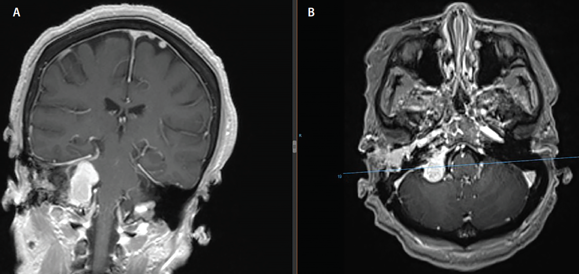Figure 1. Coronal (A) and axial (B) MRI shows an avidly enhancing glomus jugulare tumor. It extends superiorly within the right cerebellopontine angle and extends through the jugular foramen into the extracranial jugular fossa.