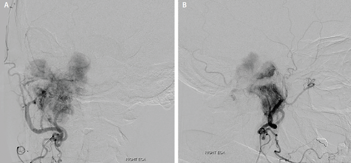 Figure 2. AP (A) and lateral (B) external carotid arteriogram demonstrate hypervascularity of the glomus jugulare tumor with extensive tumor blush apparent. Partial embolization was performed to palliate intermittent hemorrhagic otorrhea.
